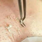 Pinzeta na odstranění akné